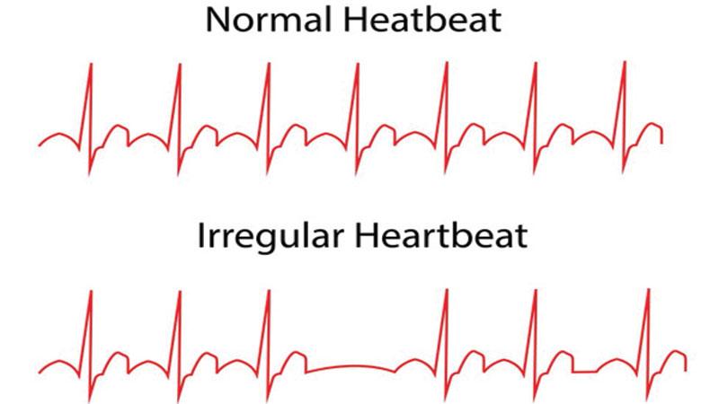 12285-heart-beats_150cmyk